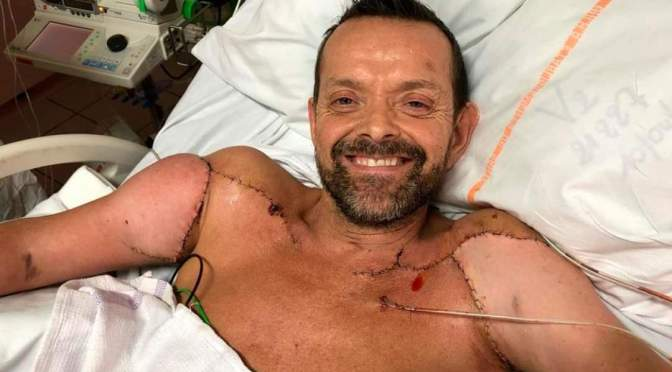 Hombre que recibió primer trasplante doble de brazos del mundo ya puede flexionar sus bíceps.